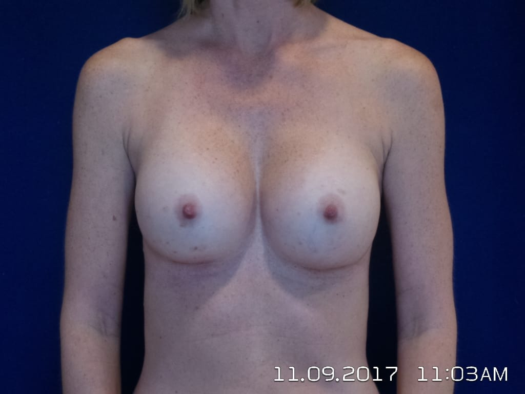 Breast Surgery Information, LV Plastic Surgery Center
