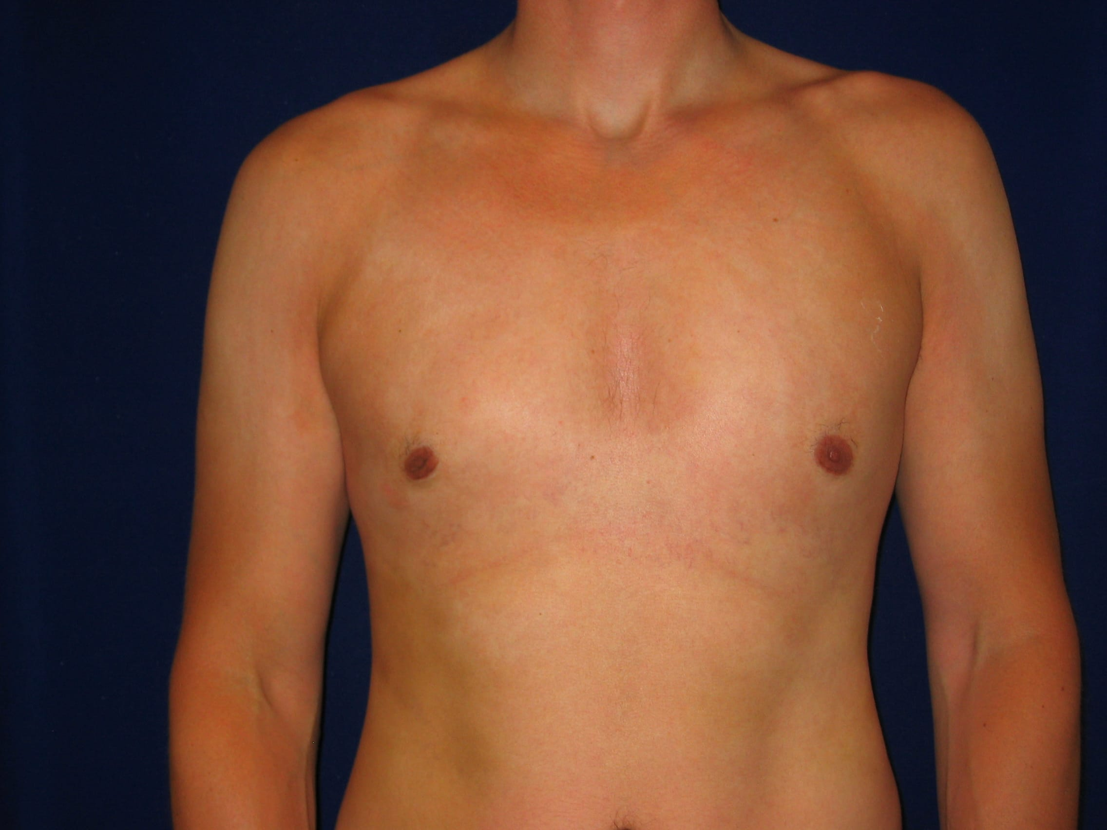 Male Cosmetic Procedures, LV Plastic Surgery Center