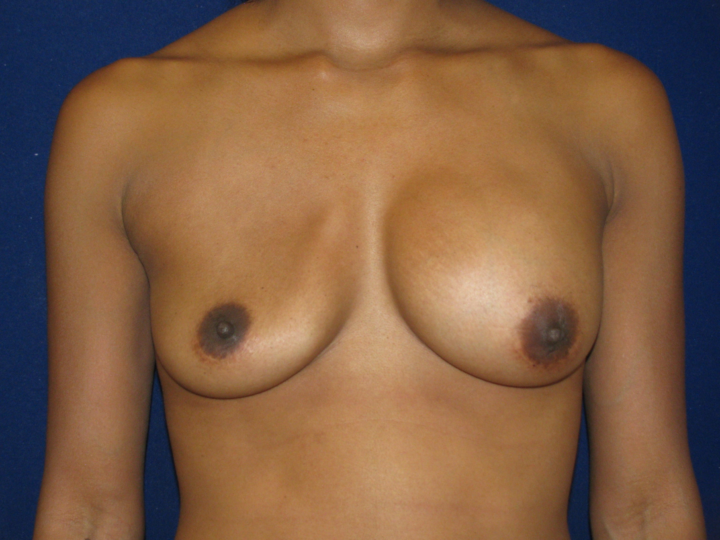 Breast Implant Removal Las Vegas