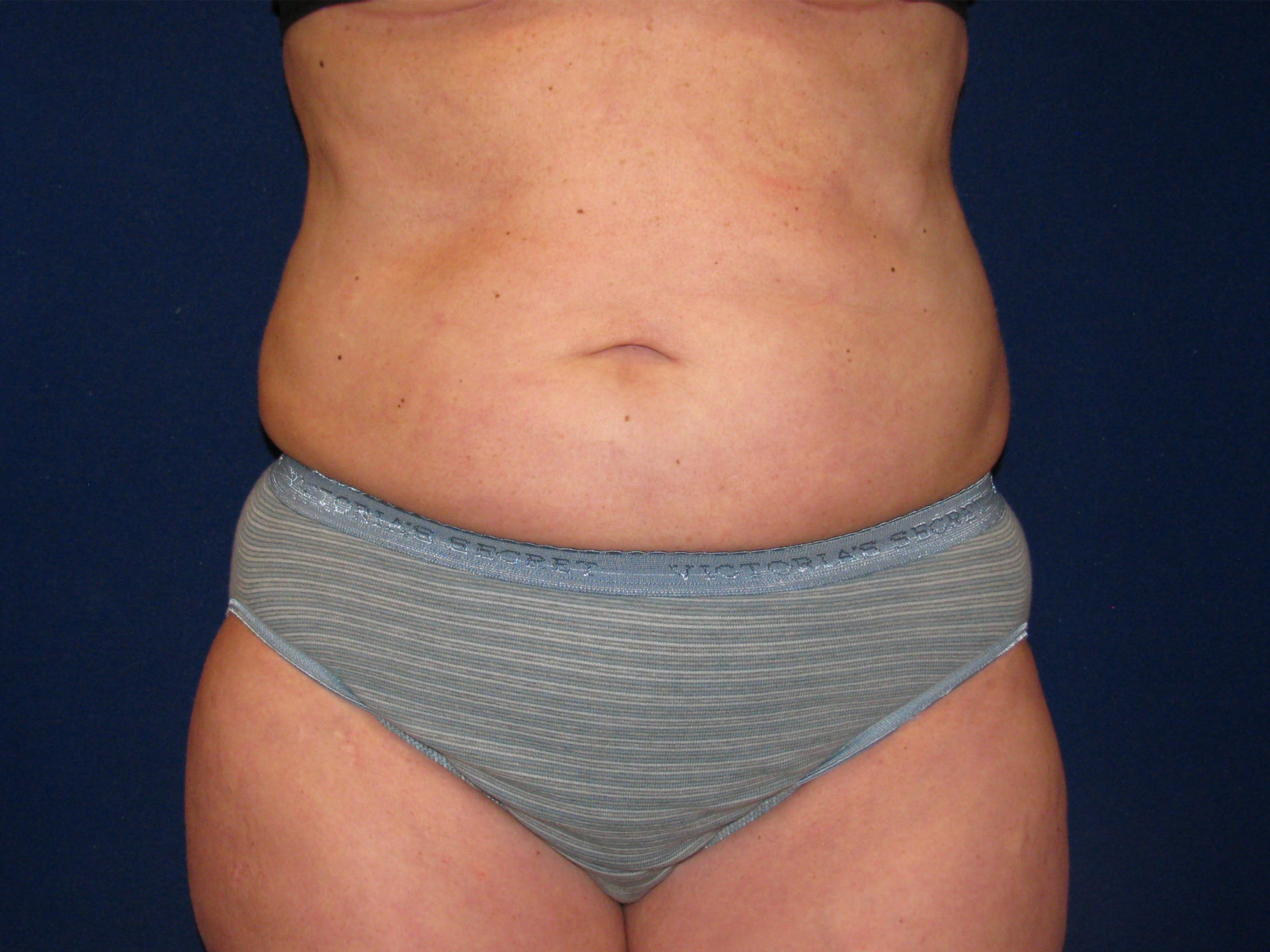 Liposuction Before And After Lv Plastic Surgery