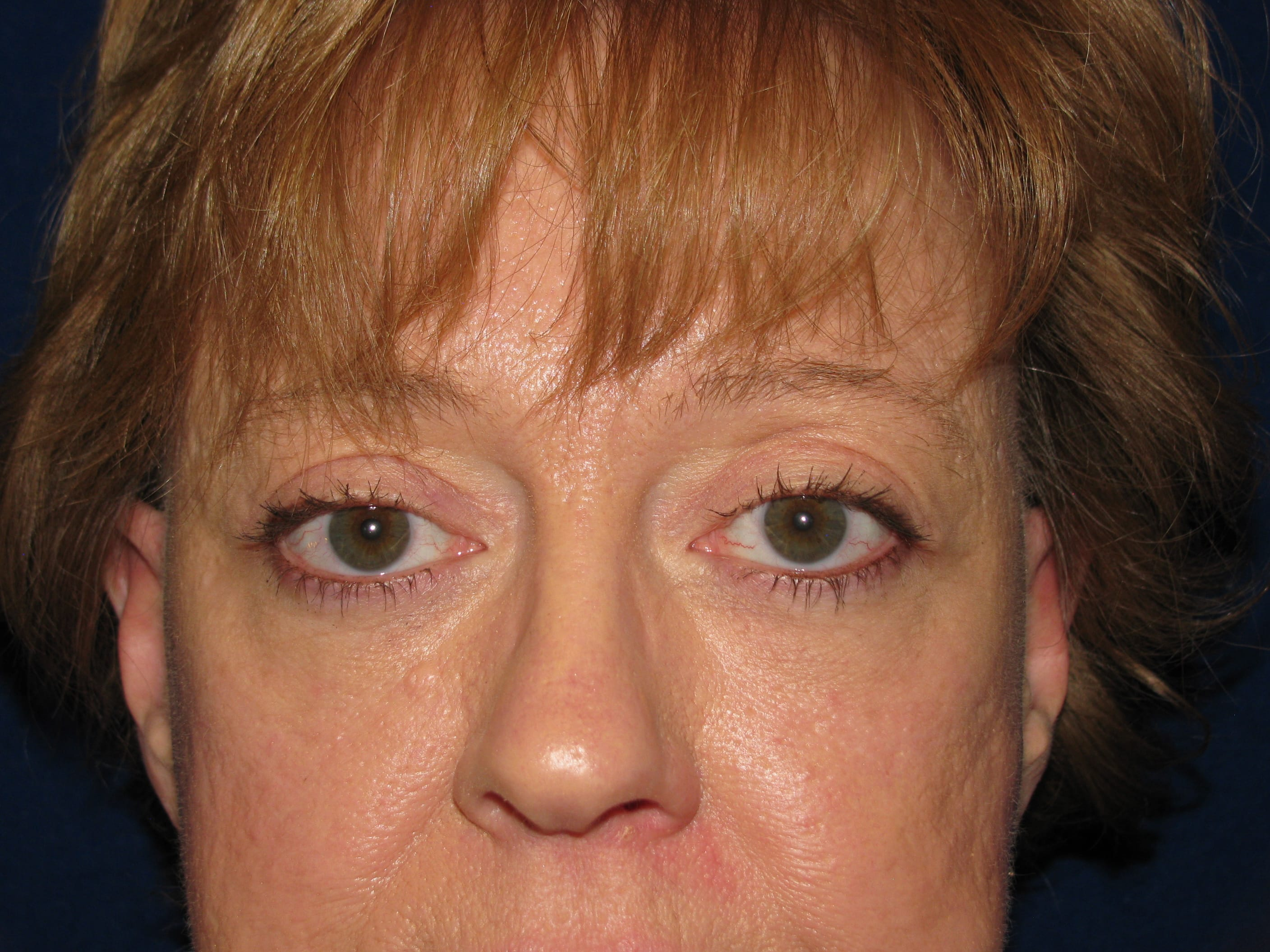 Eyelid Surgery, LV Plastic Surgery Center